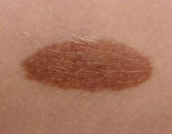 huidkliniek-linskens-moedervlek-goedaardig-huid