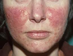 huidkliniek-linskens-rosacea