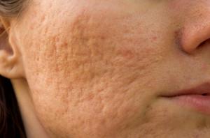 huidkliniek linskens-acne-littekens-putjes