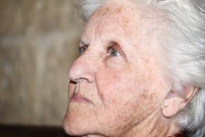 huidkliniek-linskens-huidveroudering-pigmentvlekken