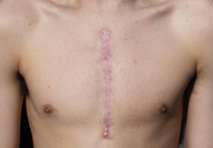 huidkliniek linskens-litteken-2